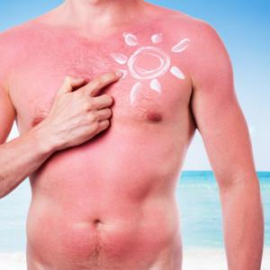 Ošetření spálené kůže