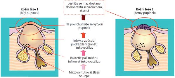 Rozdíl mezi mechanismem vzniku bílého či černého pupínku