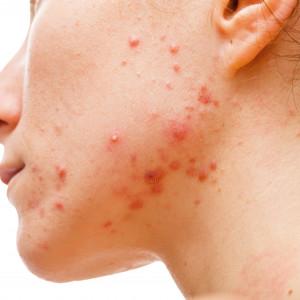 Jak se zbavit akné trvale a efektivně