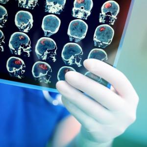 Jak poznáte cévní mozkovou příhodu a jak poskytnout první pomoc