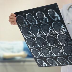 Co je to cévní mozková příhoda?