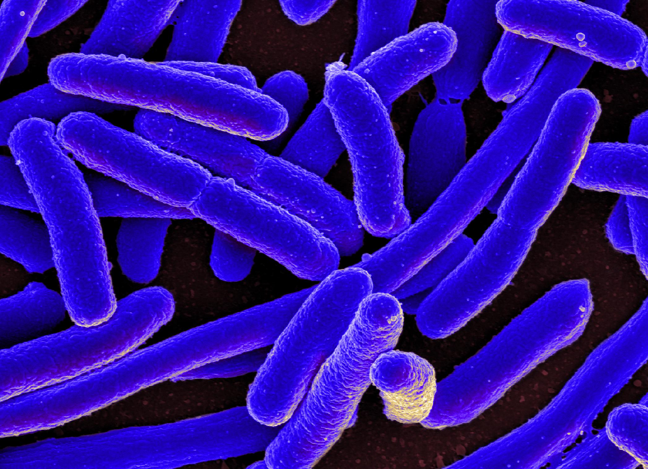 zánět močových cest - e.coli