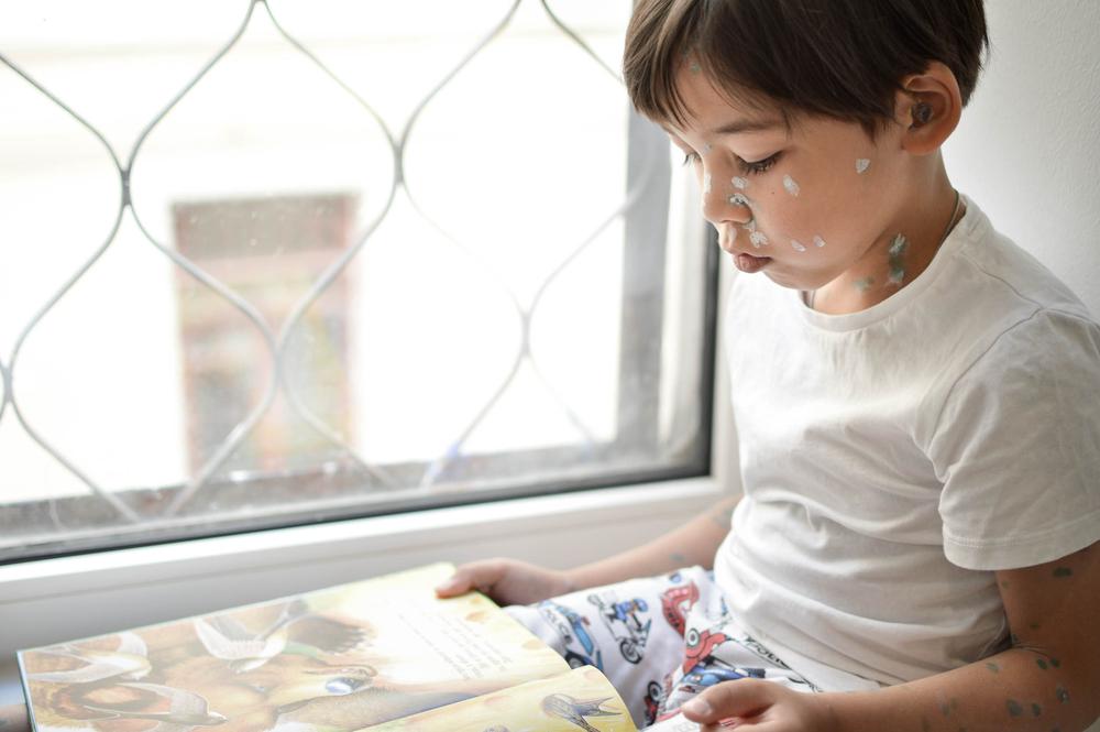 dítě-s-neštovicemi.jpg