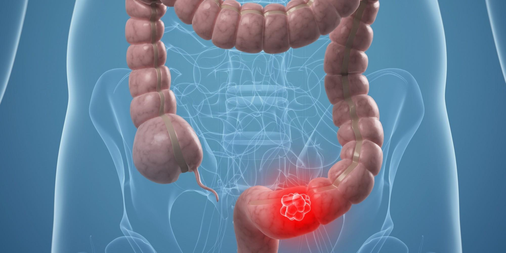 rakovina tlustého střeva