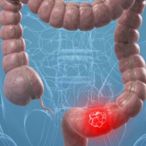 Rakovina tlustého střeva, její příznaky a léčba