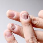 Příznaky a léčba plísňového onemocnění nehtů