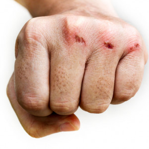 Několik rad, jak nejlépe ošetřit strženou kůži